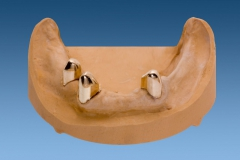 3 primary telescopes denture model view