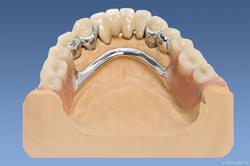Complete Attachment denture