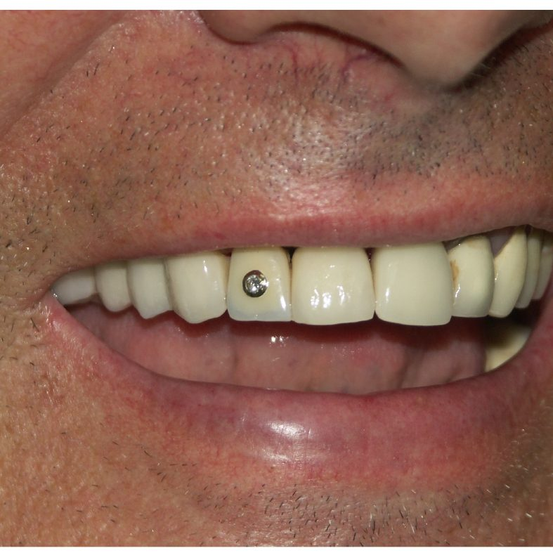 Crown temporarely inserted