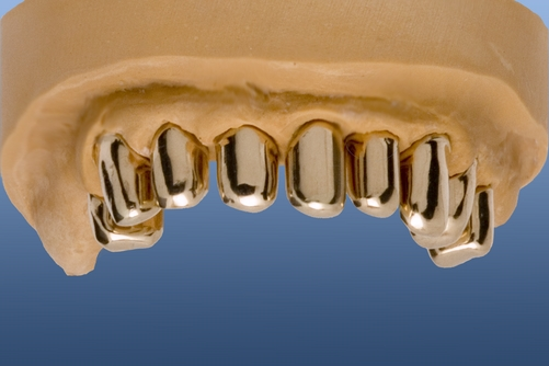 Copings in the upper jaw polished and ready for modelling the outer crowns