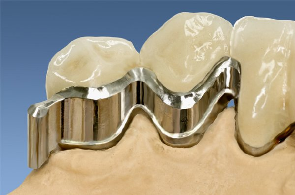 Individual Attachment with two stressbrakers -Teeth are Us Germany