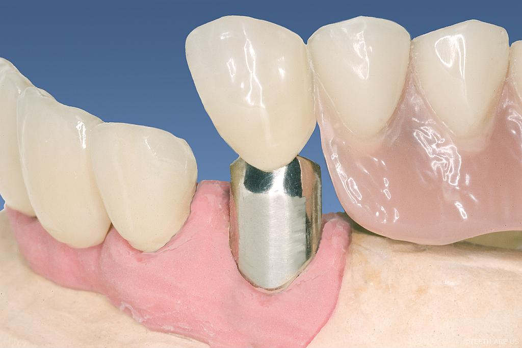 Telescoping crowns during Insertion