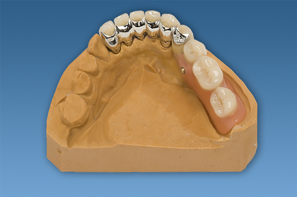 Six unit front teeth bridge LJ. Finished work